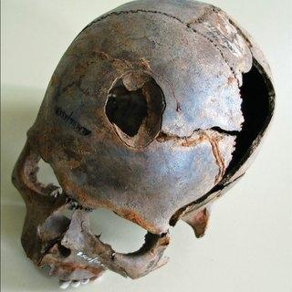 Weltzin-human-skull-with-large-fracture-photograph-D-Jantzen_Q320.jpg